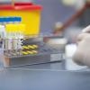 ГК «Ренова» поставит в регионы 50 тысяч экспресс-тестов на коронавирус