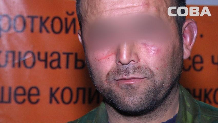 Пьяные отдыхающие избили охранника пункта проката велосипедов и сломали ему нос